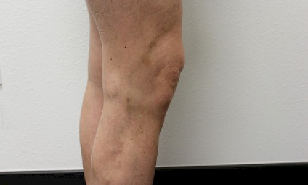 After varicose vein treatment