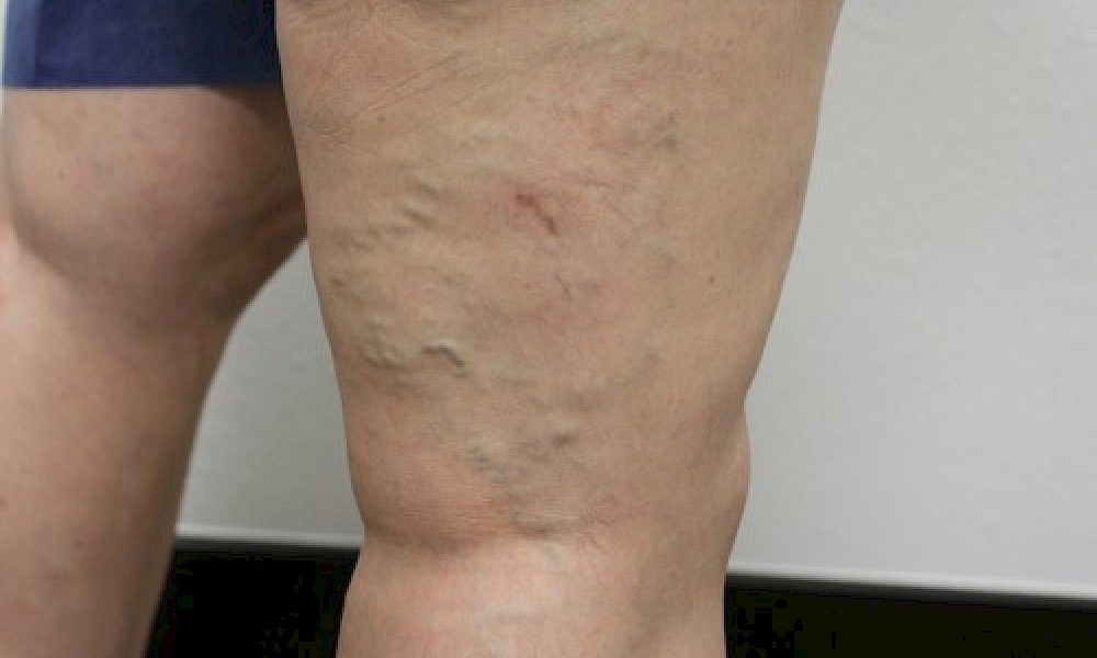 Before varicose vein treatment